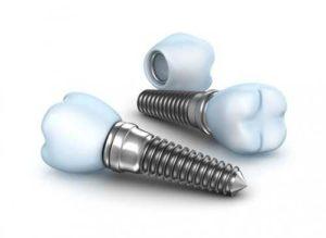 implanty zębowe Opole