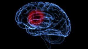 Próchnica a zator mózgu