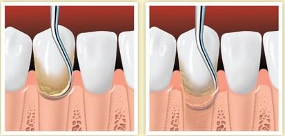 scaling zębów