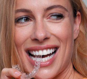 ortodoncja kosmetyczna